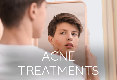 Acne Treatment East Lansing