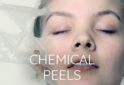 Chemical Peels East Lansing