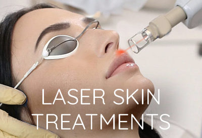 Laser Skin Treatments East Lansing