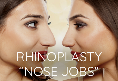 Rhinoplasty Nose Job Surgery East Lansing