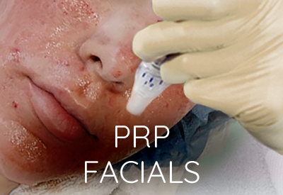 prp facials - East Lansing