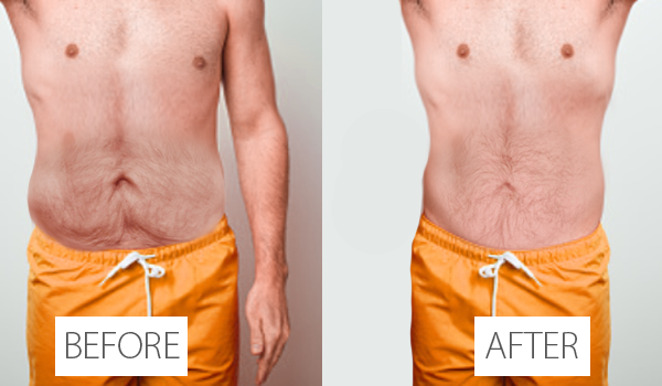 viora body before and after
